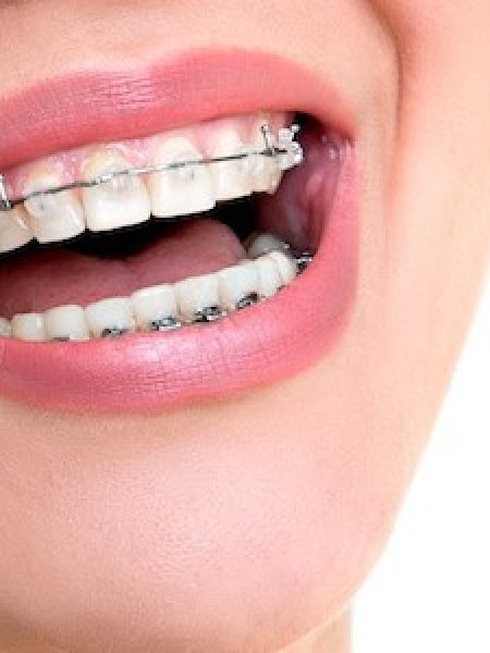 girl-with-ceramic-braces
